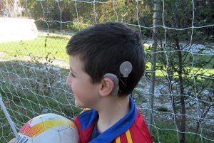 foto-implante-coclear